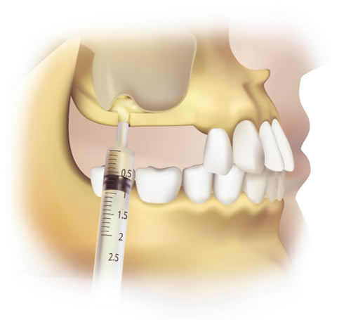 sinus-bone-graft.jpg