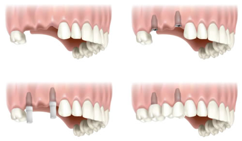 two-tooth-implant.jpg