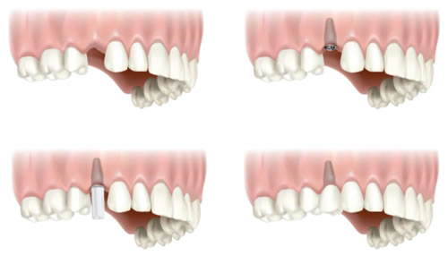 single-tooth-implant.jpg